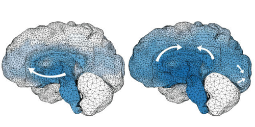 Focus: A Physical Model for Neurodegenerative Disease